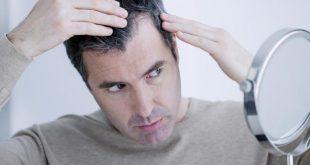 اسباب الشيب المبكر,عوامل الظهور المبكر للشعر الابيض