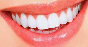 تغليف الاسنان بالسيراميك , ما هى طرق تغليف الاسنان الحديثه؟
