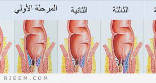 صور ما علاج البواسير , افضل علاج للبواسير