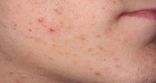 بالصور حبوب كبيرة تحت الجلد في الوجه , علاج حبوب الوجه