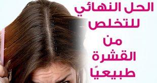 بالصور علاج قشرة الشعر طبيعيا , شعرك جميل بدون قشرة