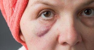 سبب انتفاخ الوجه , انتفاخ الوجه اسبابه وعلاجه