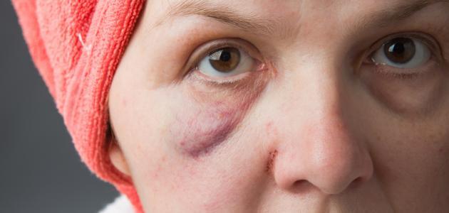 صور سبب انتفاخ الوجه , انتفاخ الوجه اسبابه وعلاجه