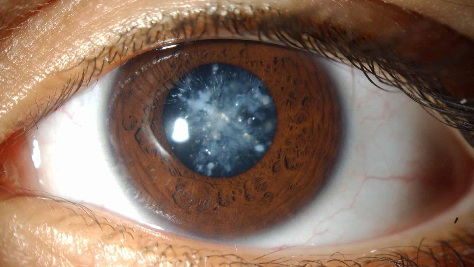 صور علاج المياه البيضاء بالقران , كيفية علاج العين من المياة البيضاء بالقران