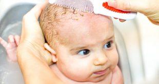 صور علاج القشرة عند الاطفال , كيفية التخلص من قشرة الراس