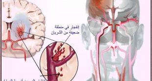 صور علاج تلف الدماغ بالقران , كيفية علاج ضمور الدماغ بالقران