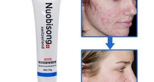 صور علاج البثور في الوجه , افضل علاجات طبيعية للتخلص من بثور الوجه