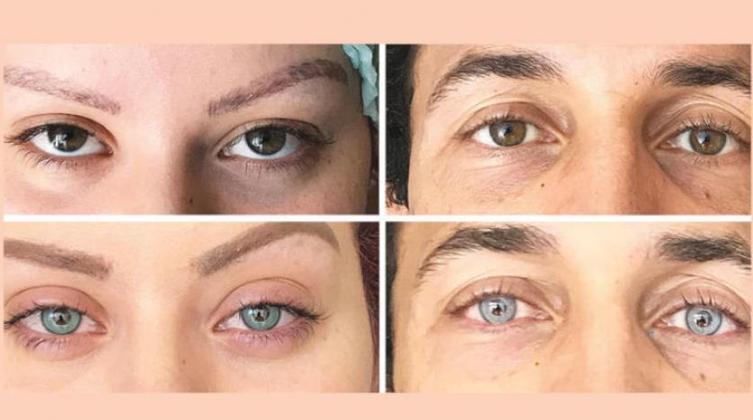 صورة تغيير لون العين بالليزر , عملية تغيير لون العين بدون جراحة