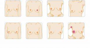 صور اعراض سرطان الثدي الاولية , الاعراض المبكرة لسرطان الثدى