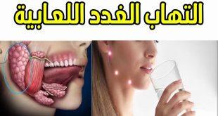 صور علاج الغدد اللعابية , التهاب الغدد اللعابية وعلاجها