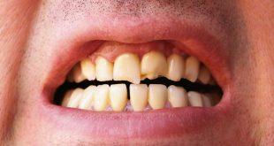 اسباب تكسر الاسنان , اسباب تاكل الاسنان
