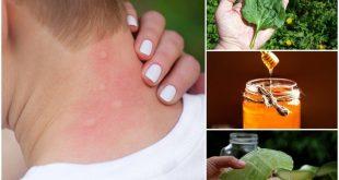 صور علاج قرصة البعوض , اعراض قرصة البعوض وعلاجه