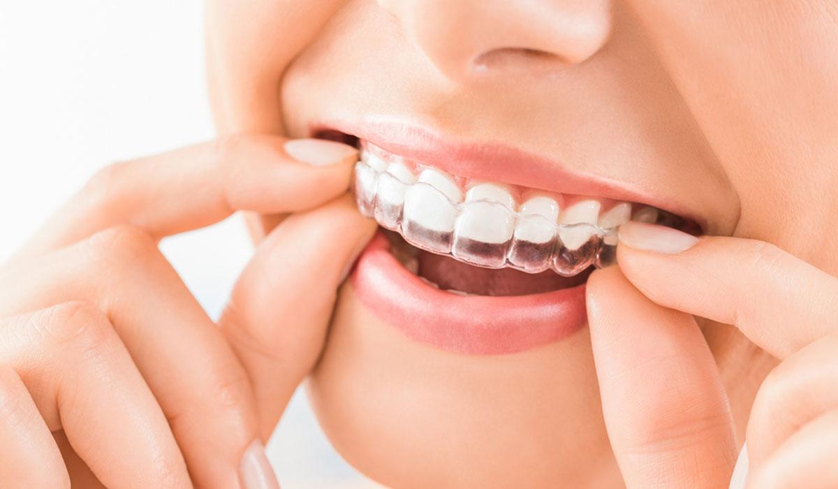 صورة قوالب تبييض الاسنان , ماهى قوالب تبييض الاسنان 1652 1
