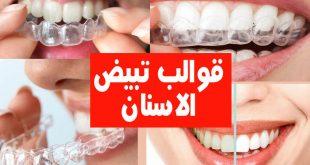 قوالب تبييض الاسنان , ماهى قوالب تبييض الاسنان