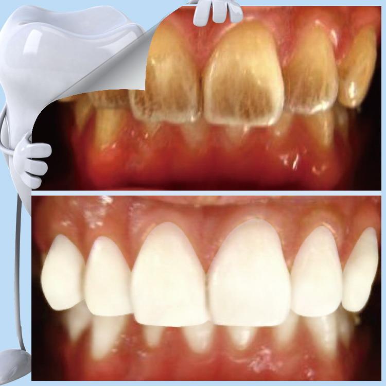 صورة علاج تبييض الاسنان , افضل طريقة للتخلص من اصفرار الاسنان 1725 1