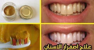 صورة علاج تبييض الاسنان , افضل طريقة للتخلص من اصفرار الاسنان