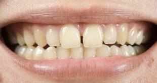 صورة علاج اصفرار الاسنان , حلول مذهلة للتخلص من اصفرار الاسنان