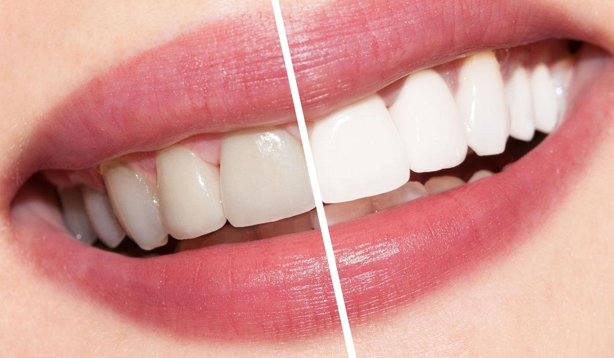 صورة تبييض الاسنان بالليزر , فوائد واضرار ليزر الاسنان 1852 2