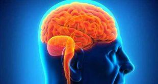 صورة علاج الجلطة الدماغية بالاعشاب , طريقة علاج الجلطة الدماغية طبيعيا