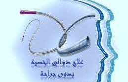 صورة عملية دوالي الخصية بالقسطرة , علاج دوالي الخصية بدون جراحة