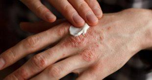 صور علاج اكزيما اليدين , طريقة علاج مرض اكزيما اليدين