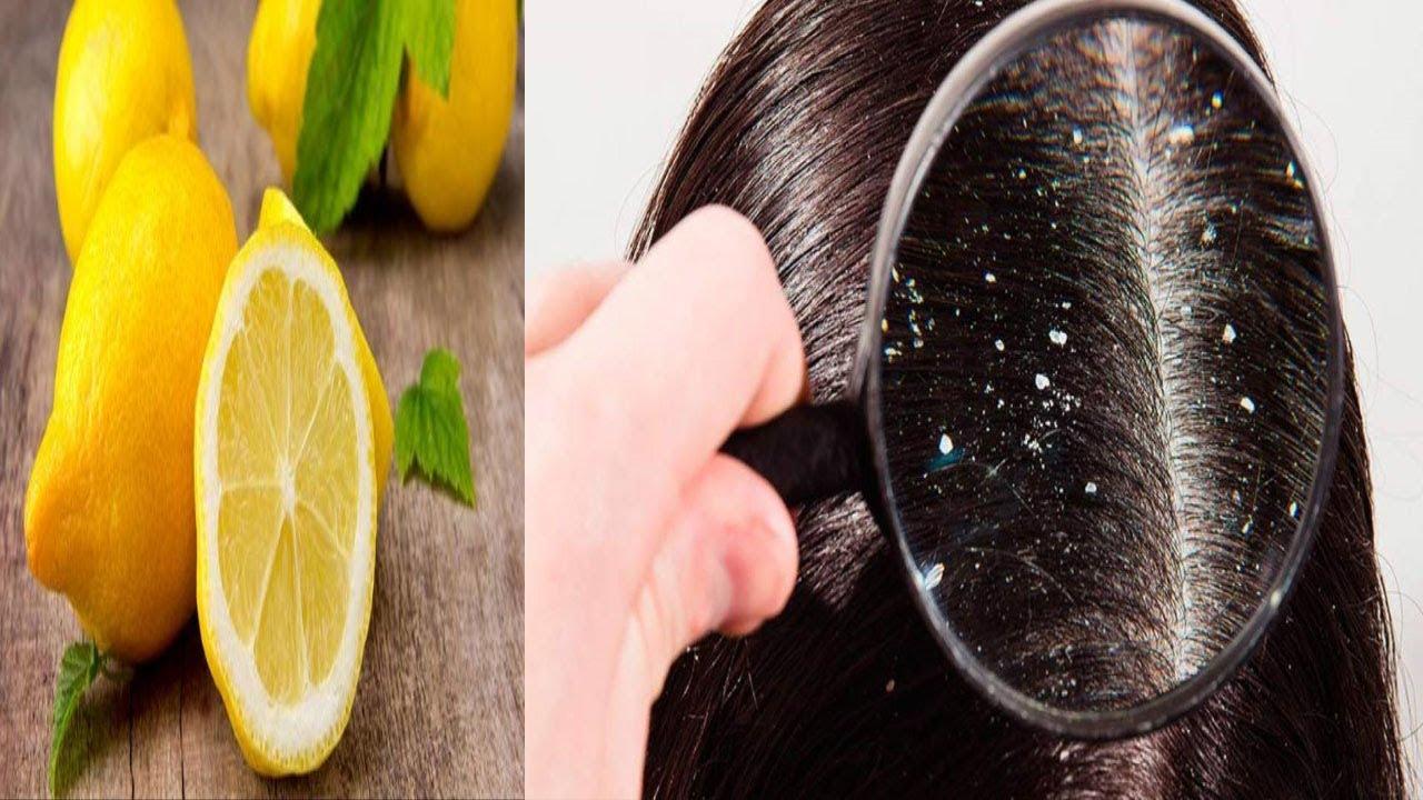 صورة علاج القشرة في الشعر من اول مره , و انتى فى منزلك تخلصى من القشرة المزعجة