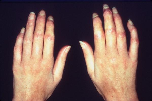 اسباب تغير شكل اصابع اليد تغيرات اصابع اليدين وعلامات الخطر اغراء القلوب