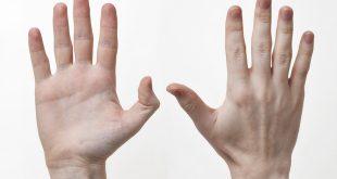 صورة اسباب تغير شكل اصابع اليد , تغيرات اصابع اليدين وعلامات الخطر