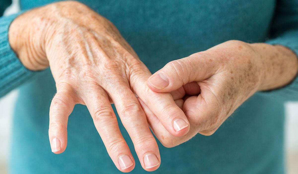 صور اعراض التهاب المفاصل , مرض منتشر بين كبار السن
