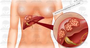 صورة اسباب دهون الكبد , تعرف على دهون الكبد