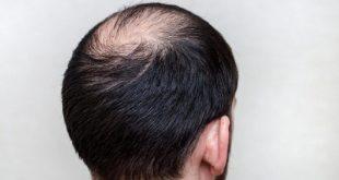صورة تساقط الشعر الوراثي , علاج تساقط الشعر الوراثي