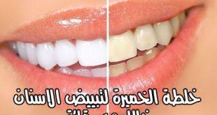 خلطه تبيض الاسنان , احلى وصفات لتبيض الاسنان