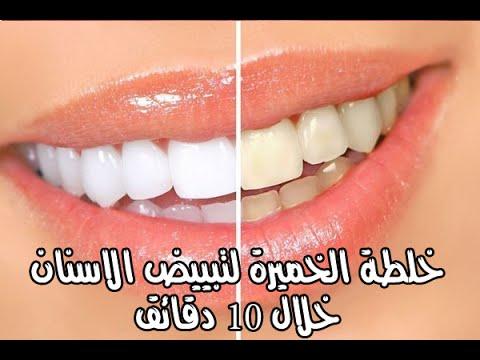صورة خلطه تبيض الاسنان , احلى وصفات لتبيض الاسنان 3964