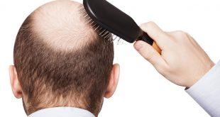صور تساقط الشعر عند الرجال , ما اسباب تساقط شعر الرجال