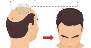 صورة كيفية زراعة الشعر , مالا تعرفه عن زراعة الشعر