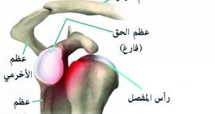 صورة علاج خلع الكتف المتكرر بدون جراحة , اخطار خلع الكتف والاسعافات الاوليه لها