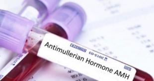 صورة ما هو علاج انخفاض هرمون amh , التوتر سبب في تقليل مخزون المبيض