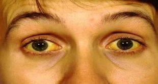 صورة اعراض مرض فيروس c , تحرى الاحتياطات تقى نفسك من الاعراض