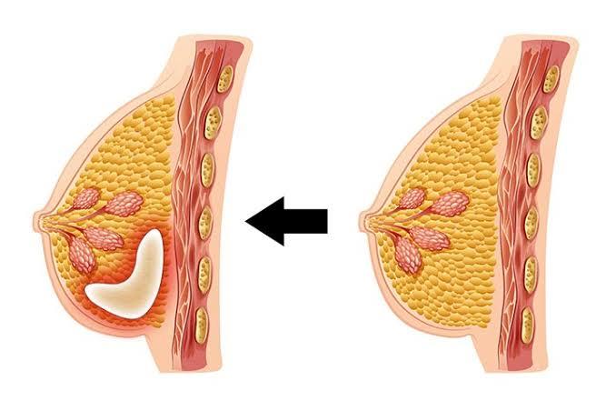 صورة ماهي اسباب الام الثدي , حددى نوع ألمك تكتشفى طريقة علاجك