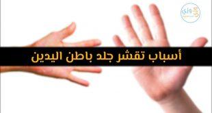 صورة مالذى يجعل اليدين تقشر وماعلاجها، اسباب تقشر اليدين