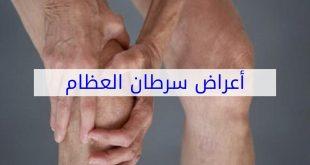 صورة ما هي العلامات التي توضح الاصابه بسرطان العظام ،ما اعراض سرطان العظام