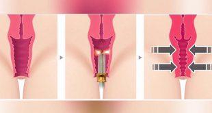 صورة ما هي عملية تضييق المهبل ،تضييق المهبل بالليزر في الخبر