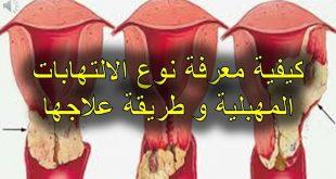 صورة تعرفي على التهابات المهبل وأسبابها ،انواع التهابات المهبل