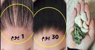 صورة تعرف علي فوائد الثوم لتكثيف الشعر ،الثوم لانبات الشعر